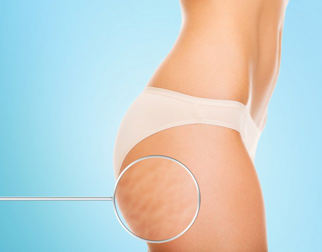 Cellulite Not a Word We Love To Hear